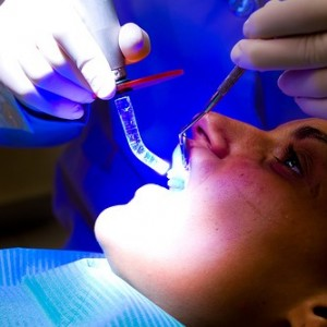 Tooth filling,dental fillings,tooth pain after filling,temporary tooth filling,Tooth filling Rancho Cucamonga,Tooth filling in Rancho Cucamonga