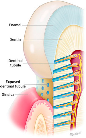 An illustration showing exposed dentinal tubules