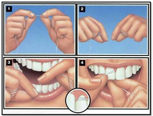 Step-by-step illustration of how to floss to prevent gum disease
