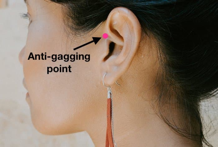 A photo showing the anti-gagging accupressure points just in front of the ears