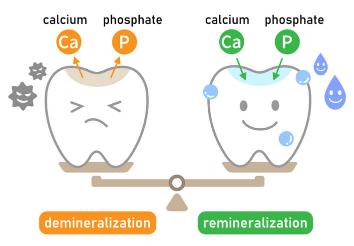 The demineralisation and remineralisation process explained in an infographic